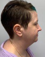 Submental (Chin) Liposuction