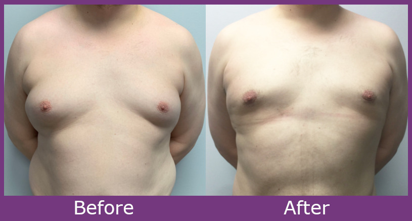 Before and after image of gynecomastia surgery results. Front View.
